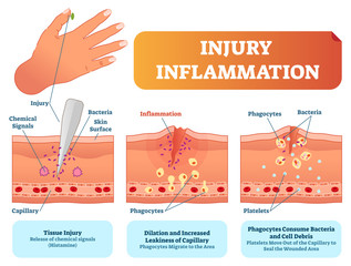 Injury inflammation biological human body response vector illustration scheme. Skin surface injury cross section poster with capillary, phagocytes and platelets.