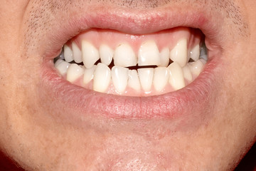 Ugly teeth with terrible smile. Portrait of close up man with crooked white teeth. Dental problem, care and toothache.