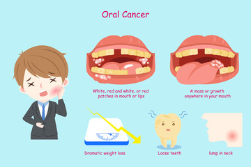 businessman with oral cancer