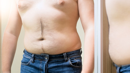 Young obese man with big hairy belly looking in mirror
