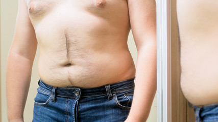 Closeup photo of obese man with big hairy belly