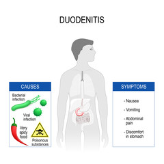 Duodenitis. Symptoms and causes.