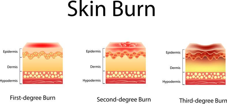 skin burn. Three degrees of burns. type of injury to skin, Vector illustration