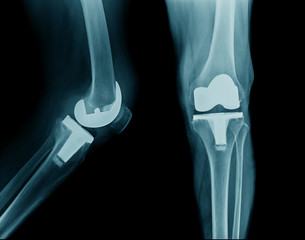 x-ray hip replacement or total knee arthroplasty AP and lateral view