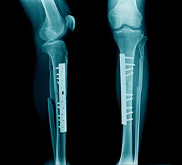 fracture leg both bone with post fixation tibia bone