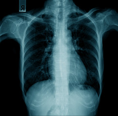 chest x-ray image, high quality x-ray image