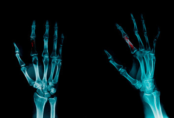 x-ray finger show fracture of index finger