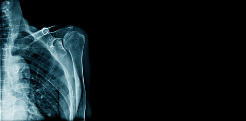 x-ray shoulder banner or logo, x-ray image show part of shoulder joint with space for text