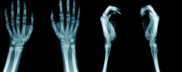 x-ray image and and forearm AP/Lateral view