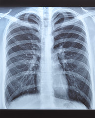 X-ray shot of a man's lungs.