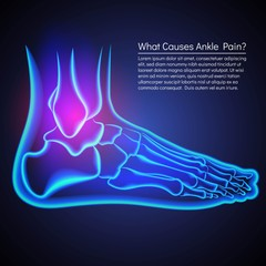 A broken ankle x-rey. Anatomy of the ankle. Pain in ankle.