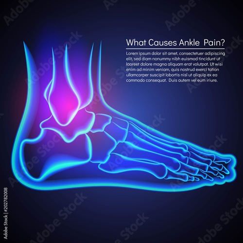 A Broken Ankle X Rey Anatomy Of The Ankle Pain In Ankle Stock