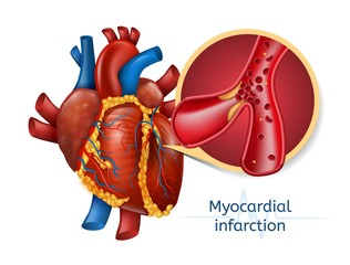 Myocardial infarction. 3d Realostic Heart