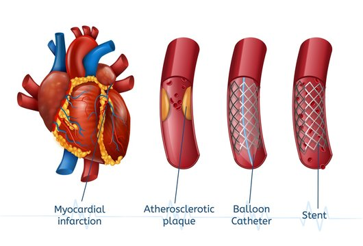 Myocardial infarction. 3d Realostic Stent in Heart