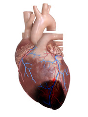 3d rendered, medically accurate illustration of a heart attack