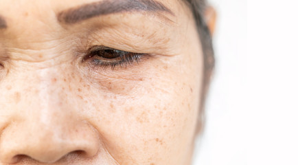 wrinkled of old asian woman skin eyelid