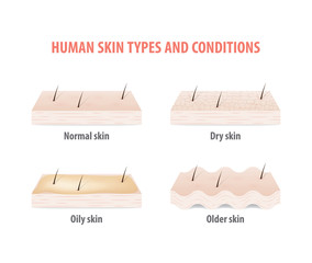 Human skin types and conditions illustration vector on white background. Skin concept.
