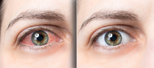 Woman red eye before and after eyewas