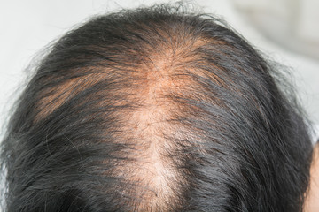Thin  hair and scalp problems and broken hair