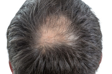 male head with circular thinning hair or alopecia