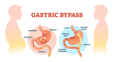 Gastric bypass medical surgery procedure vector illustration with esophagus, stomach, duodenum and jejunum flow.