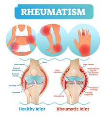 Rheumatism medical health care vector illustration poster diagram with damaged knee erosion and painful body joints.