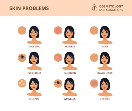 The most common female facial skin problems: acne, wrinkles, dry skin, dark circles, blackheads and oil skin. Dermatology poster with asian woman face