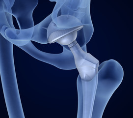 Hip replacement implant installed in the pelvis bone. X-ray view. Medically accurate 3D illustration