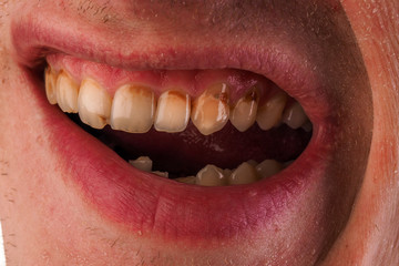 Dental medicine and healthcare - human patient open mouth showing caries teeth decay. Unhealthy denture, tartar on frontal teeth, plaque and gingivitis.