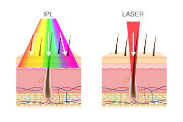 The difference of using IPL light and laser in hair removal. Illustration about beauty technology.