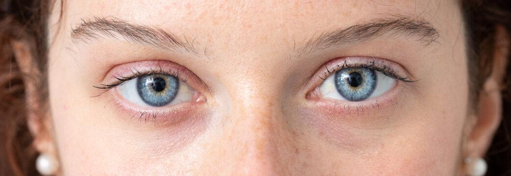Blue eye of young caucasian woman