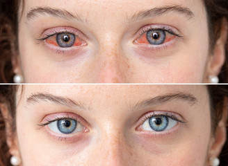 Red eye treatment before and after eyewash