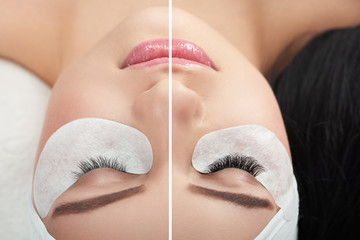 Photo comparison consisting two parts :woman's normal and enlarged lashes. Client lying on special coach wearing headbandage for lashmaking. Having long black hair. Loving beaty procedures in salone.