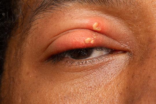 Herpes simplex in eyelid of african man