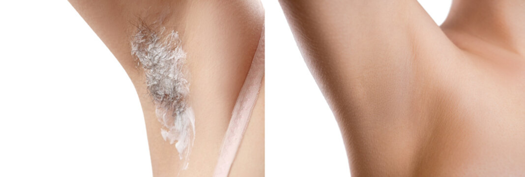 hairy armpit, isolated on white background, close-up, unshaven,  a lot of hair, depilatory cream