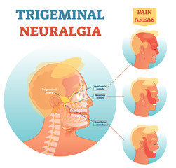 Trigeminal neuralgia medical cross section anatomy vector illustration diagram with facial neural network and pain areas.