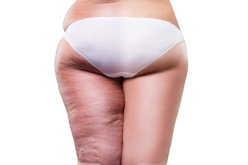 Overweight woman with fat cellulite legs and buttocks, before after concept, obesity female body, rear view