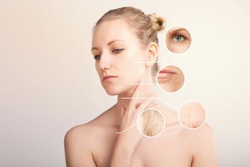 blond caucasian woman demonstrating skin lifting procedure