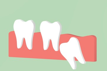 wisdom tooth ( angular or mesial impaction ) affect to other teeth