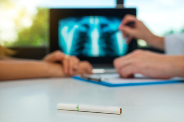 Doctor shows x-ray of lungs with cigarette. Lung cancer concept