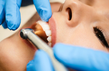 Close-up of dental drill use for patient teeth in dentistry office in a dental treatment procedure