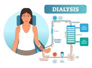 Dialysis medical procedure system vector illustration diagram. Filtering blood in case of kidney malfunction.