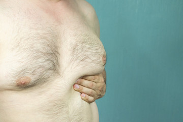 fat white middle-aged man with Gynecomastia, enlarged breast close-up