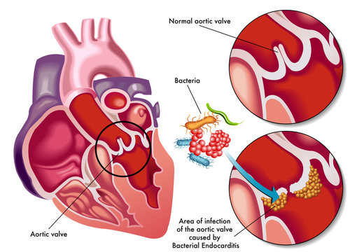 vector medical illustration of the symptoms of bacterial endocarditis