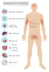 Human Anatomy Symptoms of HIV Infection
