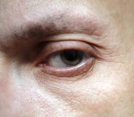 eye of man