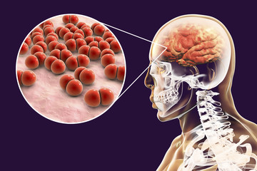 Brain infection caused by Streptococcus pneumoniae bacteria, medical concept, 3D illustration
