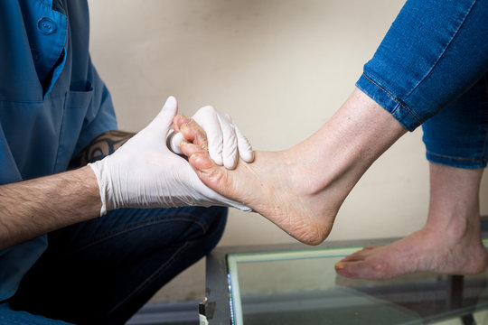 The hands of a young man doctor orthopedist conducts diagnostics, foot foot test of a woman, for the manufacture of individual, orthopedic insoles