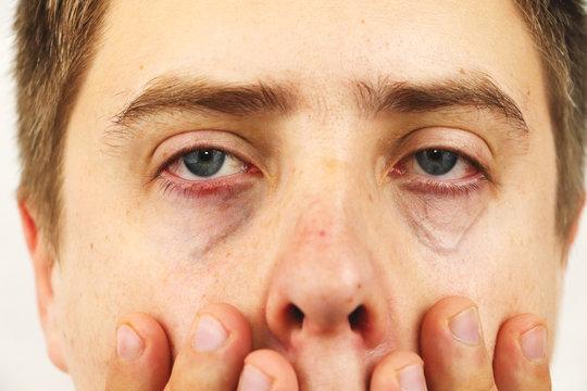 Conjunctivitis, tired eyes, red eyes, eye disease