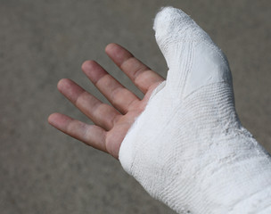 thumb of the fractured hand of the injured with the white medica